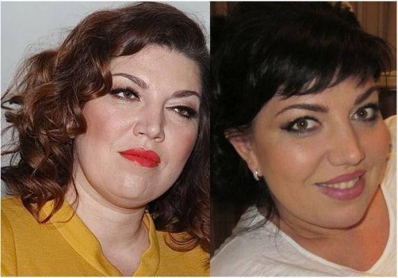 лицо скулкиной до и после